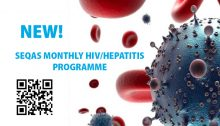 SEQAS MONTHLY HIV/HEPATITIS PROGRAMME